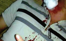 """Đang nằm trong nhà, bị """"đạn lạc"""" găm trúng cổ"""