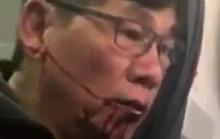 Sau vụ bác sĩ gốc Việt, United Airlines chi mạnh tay
