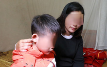 Chủ tịch Hà Nội yêu cầu điều tra vụ bé trai nghi bị bố đánh dã man