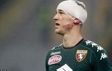 Thủ môn Hart đổ máu vì bị đạp vào đầu