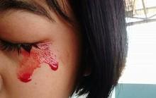 Bé gái chảy máu mắt, mũi, tai khi đau đầu