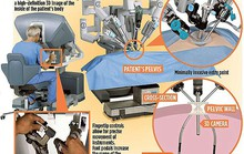 Robot cấy buồng trứng đông lạnh 11 năm cho cô gái bị ung thư