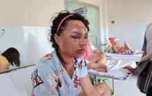 Lời kể kinh hoàng của 4 nạn nhân bị tạt a xít