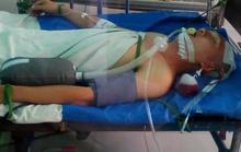 Tai nạn khó tin khi nằm võng ngày mùng 3 Tết