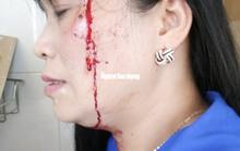 Làm rõ vụ bảo vệ chợ đánh tiểu thương nhập viện