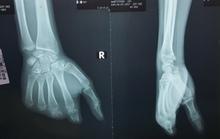 Biến ngón chân thành ngón tay cho bàn tay mất 4 ngón
