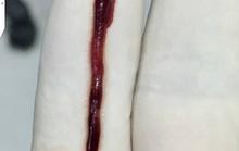 Lôi được cục máu đông gây đột quỵ dài nhất Việt Nam