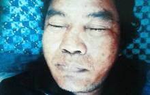 Truy tìm nhân thân người chết bị mất ngón cái bàn tay trái