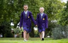 Hai cô bé song sinh thuộc dạng hiếm gặp trên thế giới