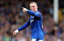 Dính chỏ đối thủ, Rooney mắt bê bết máu