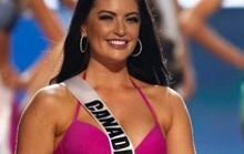 Hoa hậu Canada bị chỉ trích béo