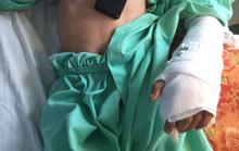 Một cậu bé 14 tuổi bị máy cắt lìa bàn tay