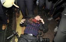 Nhân viên an ninh Trung Quốc đánh đập phóng viên Hàn Quốc