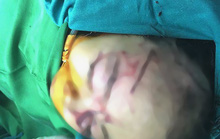Bé gái 31 tháng tuổi bị chó nhà cắn tổn thương nặng vùng mặt