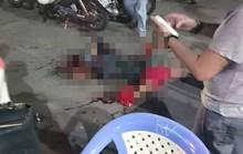Một thanh niên bị chém lìa bàn tay