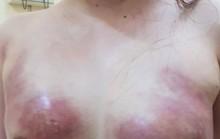 Cô gái trẻ bị hoại tử ngực vì bơm mỡ nhân tạo ở Spa