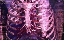 Những ca bệnh kỳ quặc đến bác sĩ cũng kinh ngạc bổ ngửa