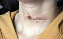 Lái xe ôm thoát chết do hung thủ sử dụng dao cùn cắt cổ