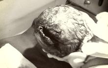 Con dâu sinh khó, mẹ chồng dùng dao cạy khiến cháu thủng đầu
