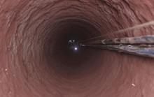 Chuyện rợn người dưới đáy giếng sâu hoắm ở Gia Lai