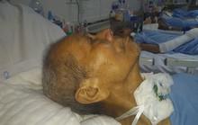Sự thật về bệnh nhân 3 tháng không người nhận ở Hà Nội