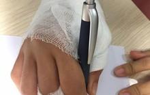 Căng thẳng cứu sống bàn tay bị xe tải cán qua