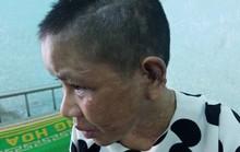 Vụ Nga vọc nghi tra tấn dã man người làm: Phường tưởng chỉ va chạm bình thường!