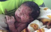 Văng khỏi bụng mẹ trong tai nạn giao thông, em bé sống sót kỳ diệu
