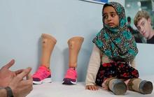 Kết thúc có hậu của cô bé Syria có đôi chân lon thiếc