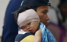 Philippines: Hạn chế đốt pháo nhưng vẫn gần 200 người bị thương
