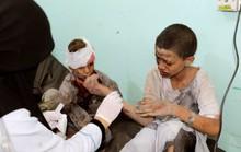 Xe buýt dính đòn thù, 29 trẻ em thiệt mạng