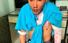 Vụ cha dượng đốt 3 người ở Đồng Nai: Hai cháu bé đã tử vong