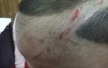 Đã có kết luận thương tích bé trai bị cha dượng đánh dã man ở Phú Quốc