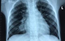 Qua 3 bệnh viện, ca bệnh phổi hiếm gặp được cứu