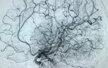 Lần đầu tiên can thiệp mạch máu não cho bệnh nhi đang tỉnh táo