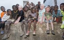 Tìm thấy 10 thi thể trẻ em không còn nguyên vẹn