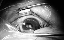 Bác sĩ rùng mình rút chiếc đinh uốn cong trong mắt bệnh nhân