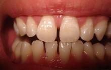 Lấp đầy răng thưa, cách nào rẻ nhất?