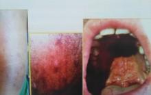 Công bố mới về bệnh phong: Bắt chước nhiều bệnh, dễ chẩn đoán nhầm