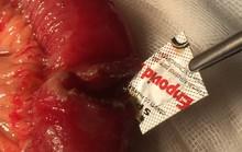 Ruột thủng 2 lỗ do uống thuốc còn cả vỏ