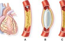 Nhiều người dưới 50 tuổi đã mắc bệnh mạch vành