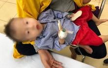 Can thiệp thành công ca bệnh cửa sổ chủ phế hiếm gặp trên thế giới cho bệnh nhi hơn 1 tuổi