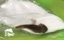 Dùng miệng gỡ cá mắc lưới, bị cá bơi vào phổi