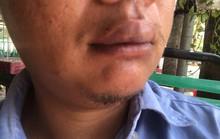 TP HCM: Dừng xe trước nhà mình,1 phóng viên bất ngờ bị hành hung