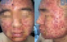 Mặt nam thanh niên 22 tuổi chi chít mụn trứng cá sau khi bôi thuốc mua trên mạng