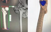 Thực hiện thành công ghép xương đùi nhân tạo