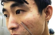 Sát hại nữ sinh viên 18 tuổi trong cơn phê ma túy đá ở nhà nghỉ