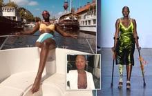 Người mẫu một chân qua đời ở tuổi 30
