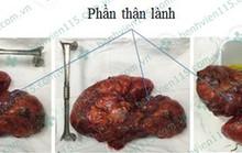 Lấy được loại u thận 3,5 kg thường gặp ở phái nữ