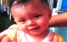 Trẻ bị úng thủy não được phẫu thuật miễn phí